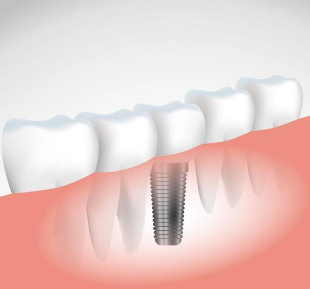 zobni-implantat